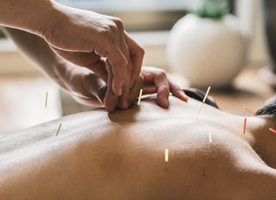 Acupuncture Clinic in East Falls