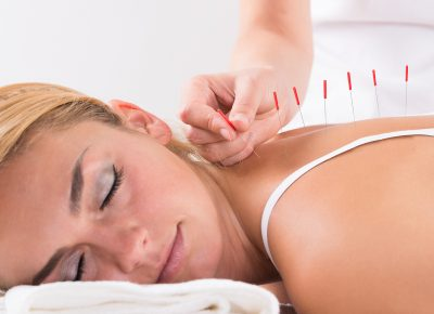 What to expect during an acupuncture treatment