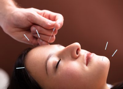 4 Reasons Why You Should Choose Acupuncture