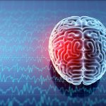 Can Acupuncture Change Brain Waves