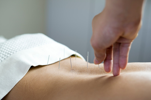 Cinnaminson, NJ Acupuncture Clinic