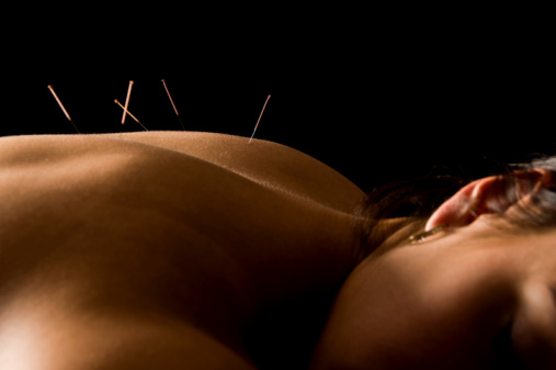 Acupuncture in Pennsauken New Jersey