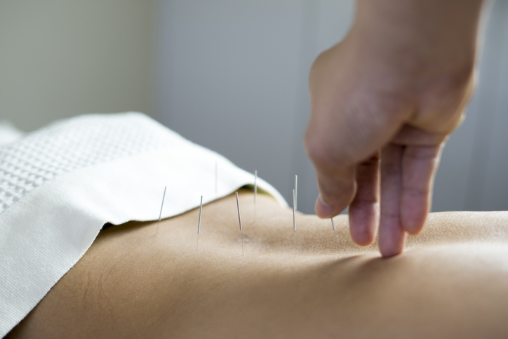 Acupuncture Clinic in Manayunk