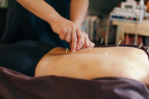 Acupuncture in West Philadelphia