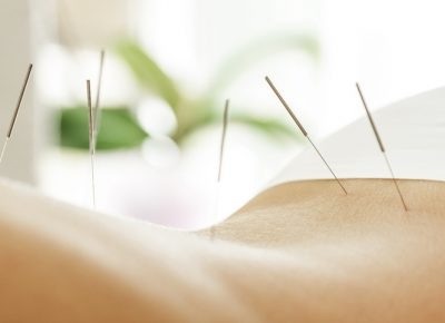 Acupuncture in Northern Liberties